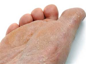 Athletes Foot Altsberglotion Product