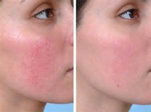 Rosacea Altsberglotion Product