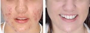 Acne Altsberglotion Product